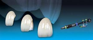 Leczenie zachowawcze, endodontyczne, odbudowy zębów