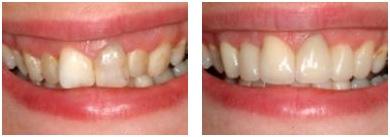 Efekt przed i po zastosowaniu licówki porcelanowej